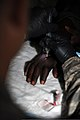 A splint is used to immobilize the finger of a Congolese soldier assigned to the Congolese Light Infantry Battalion after the fractured finger was placed into a more acceptable anatomical alignment at Camp Base 100505-F-FW561-121.jpg