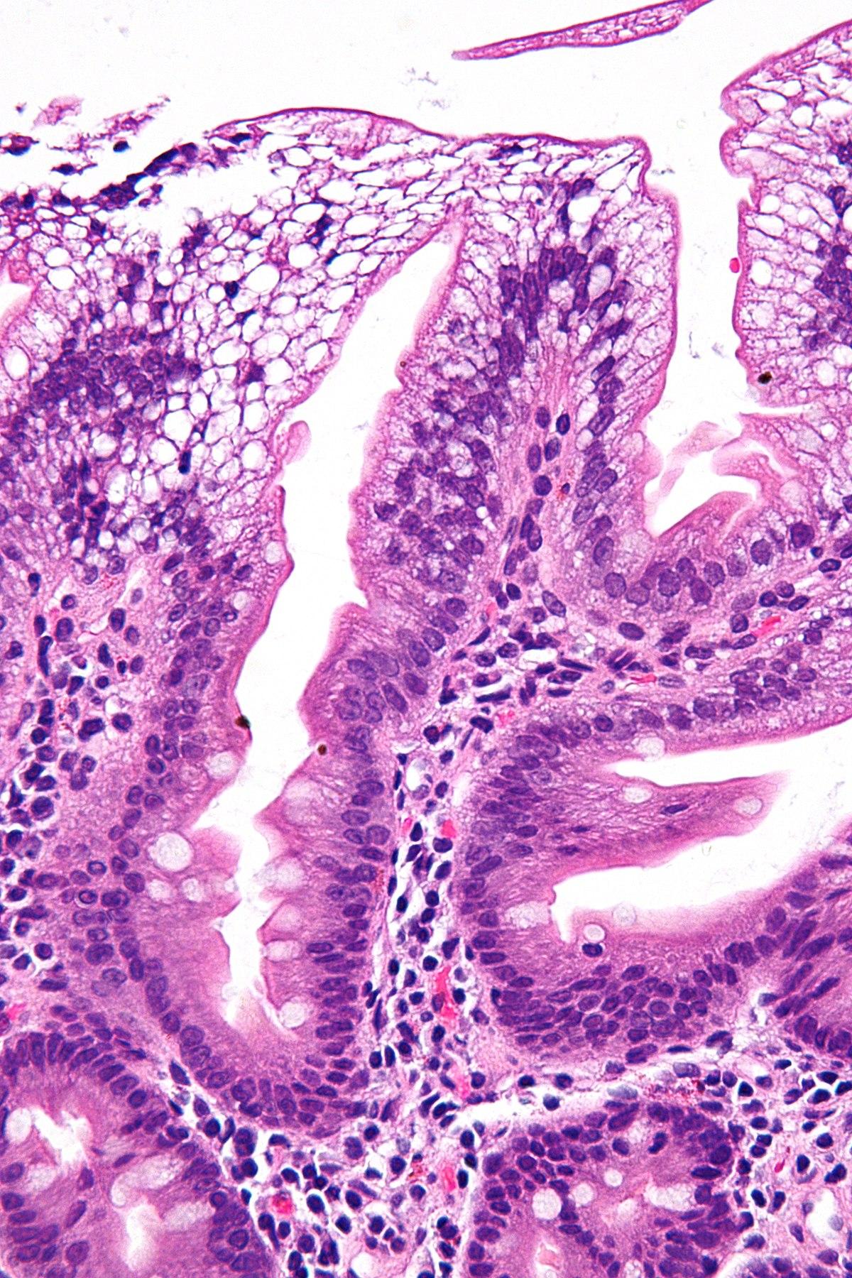 Abetalipoproteinemia - Wikipedia