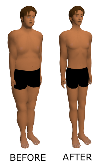 Weight loss - A depiction of an individual's weight loss.