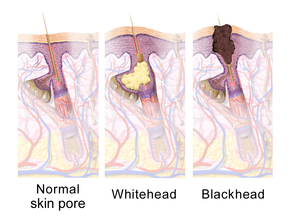 Three images illustrating hair follicle anatomy