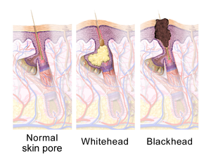 illustration comparing a normal skin pore with a whitehead and a blackhead