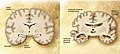 Cerebro corte frontal Alzheimer.jpg