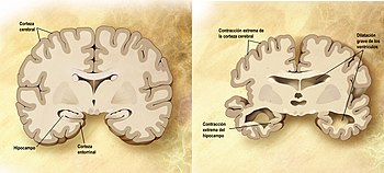 English: Combination of two brain diagrams in ...