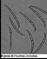 Esporas de Fusarium circinatum.png