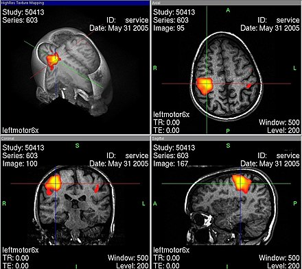 Funktionelle Magnetresonanztomographie – Wikipedia