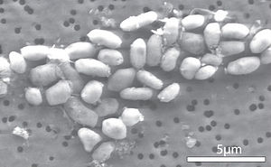 GFAJ-1 - Magnified cells of bacterium GFAJ-1 grown in medium containing arsenate