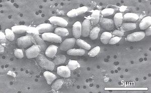 Forstørrede celler af bakteriengfaj-1 vokset på et