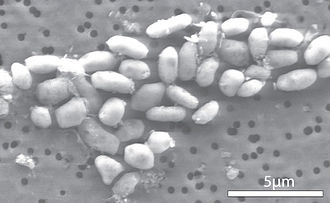 GFAJ-1 - Magnified cells of bacterium GFAJ-1 grown in medium containing arsenate