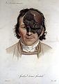 J. L. M. Alibert, Monographie des dermatoses Wellcome L0020968.jpg