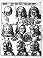 J. Scultetus, Armanmentarium chirurgicum... Wellcome L0024811.jpg