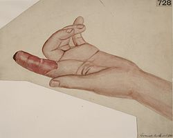 Left hand of a patient with neuritis of the upper extremities Wellcome L0061837.jpg