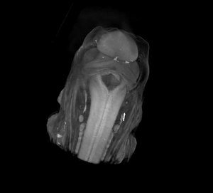 File:MicroCT Mouse embryo.theora.ogv