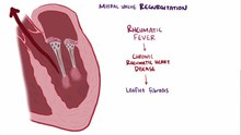 Datei:Mitral valve diseases video.webm
