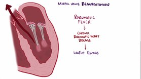Archivo:Mitral valve diseases video.webm