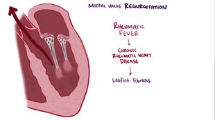 File:Mitral valve diseases video.webm