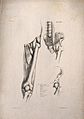 Muscles and bones of the upper leg and pelvis; three figures Wellcome V0008189EL.jpg