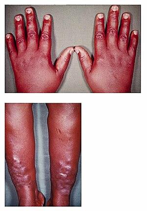 Pretibial myxedema and thyroid acropachy accom...