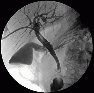 Cholangiography