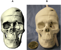 Phineas Gage's skull.png