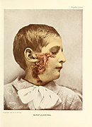 Photographic atlas of the diseases of the skin a series of ninety-six plates, comprising nearly two hundred illustrations, with descriptive text, and a treatise on cutaneous therapeutics (1905) (14781134291).jpg