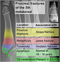 Proximal fractures of 5th metatarsal.jpg