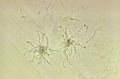 Rothia dentocariosa PHIL21293.png