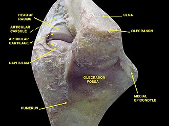 Medial epicondyle of the humerus - Image: Slide 3bgbg
