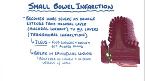 Ficheiro:Small Bowel Ischemia and Infarction.webm