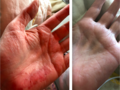 Steroid Atrophy Hands.png