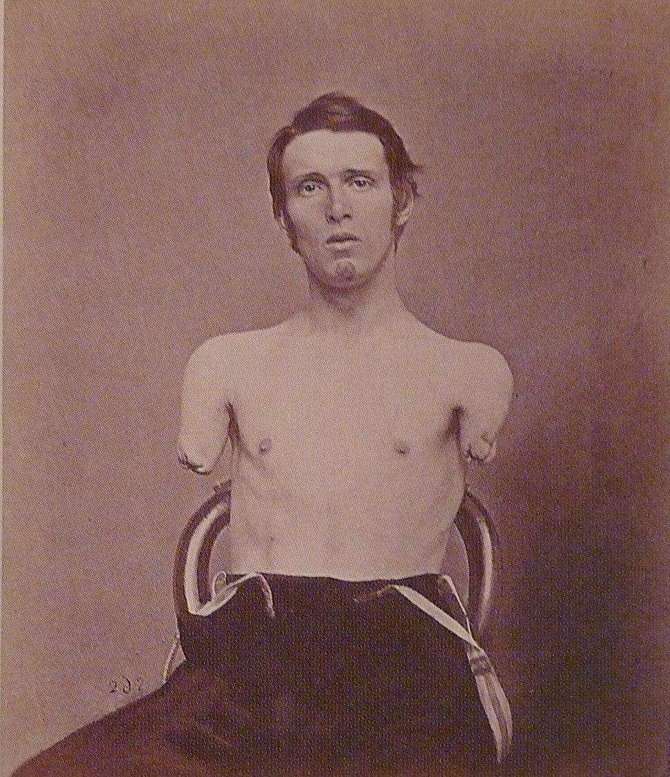 Alfred A. Stratton