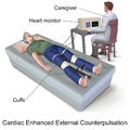 Blausen 0161 Cardiac Enhanced External Counterpulsation.png