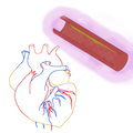 Cobalt Chromium Coronary Stent in Heart.png