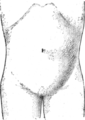 Corset1908 130Fig63.png