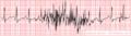De-Noise move (CardioNetworks ECGpedia).png