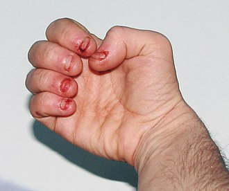 Compulsive behavior - Dermatophagia – extreme nail biting / biting of skin to point of an obsessive compulsive disorder (OCD) or other condition leading to self mutilating behaviour such as autistic spectrum disorders (as is the case in this example) or Lesch-Nyhan Syndrome.