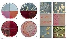 E. coli colonies