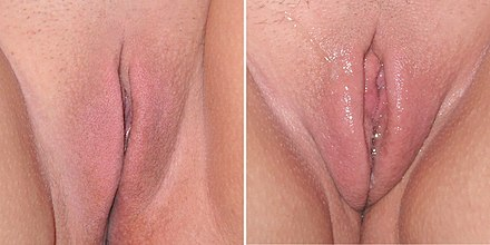 Non-aroused vulva on the left and a sexually aroused vulva on the right with enlarged and shiny labia minora from vaginal lubrication and vasocongestion Female sexual arousal.JPG
