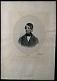Ferdinand von Arlt. Lithograph by J. Stouss. Wellcome V0000206.jpg