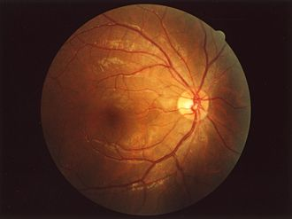 Fundus (eye) - Fundus of human eye
