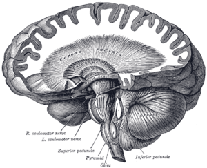 Corona radiata - Dissection showing the course of the cerebrospinal fibers.