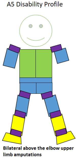 T45 (classification) - Type of amputation for an A5 classified sportsperson.