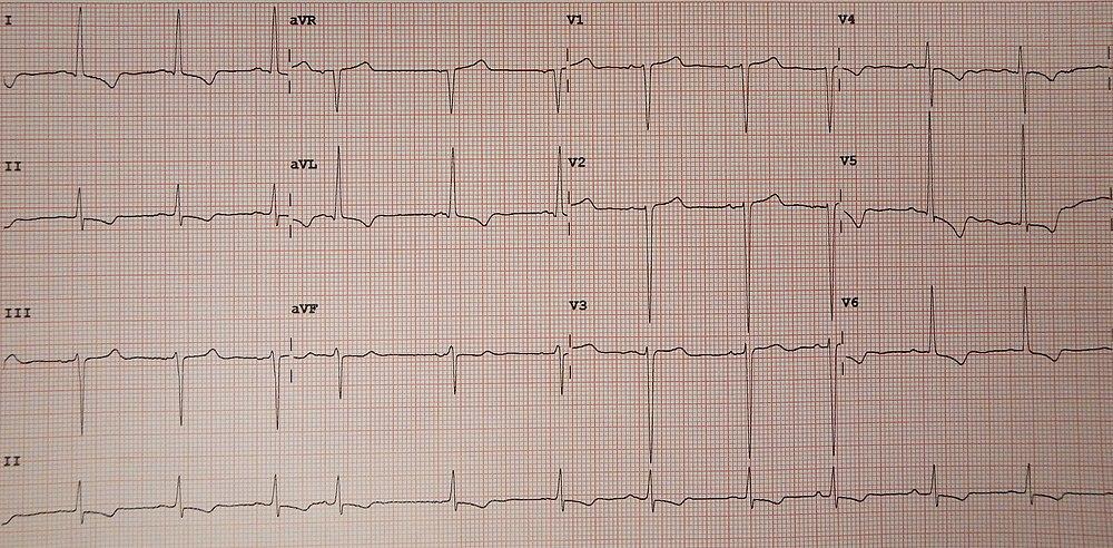 Left Ventricular Hypertrophy EAnswers