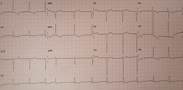 Left Ventricular Hypertrophy Wikiwand