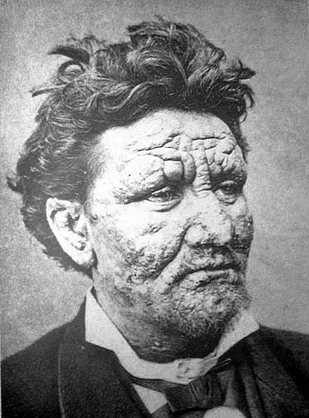 رجل نرويجي يبلغ من العمر 24 سنة مصاب بالجذام، من سنة 1886