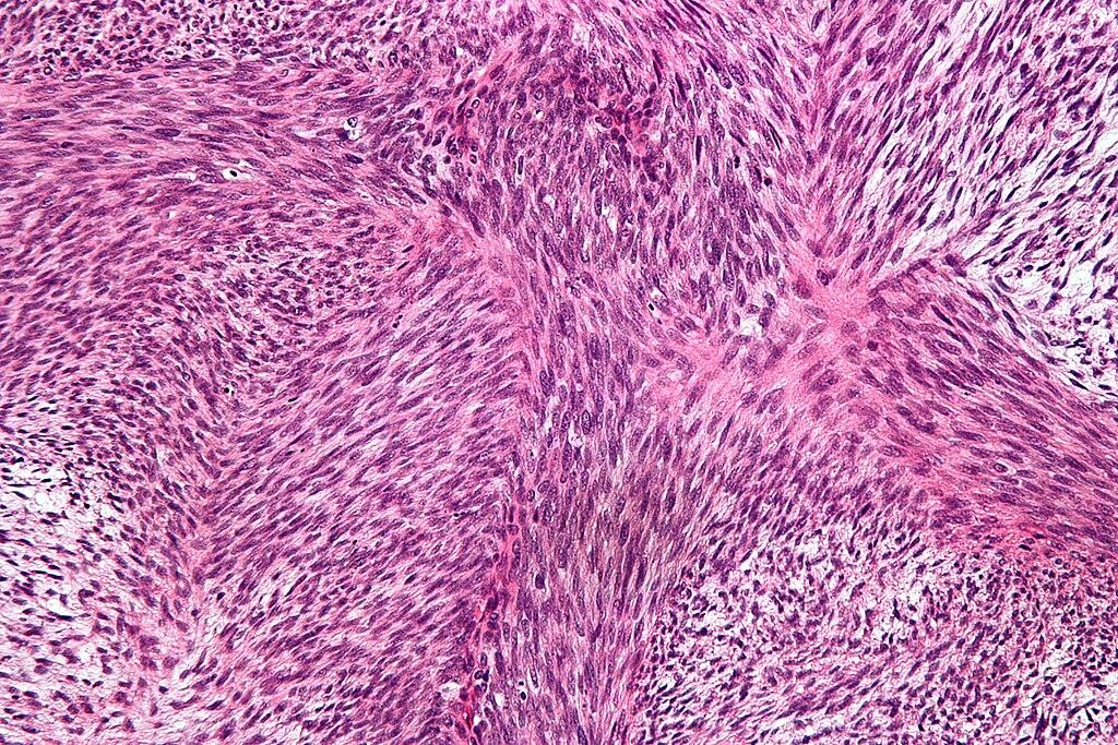 Malignant peripheral nerve sheath tumour - high mag.jpg