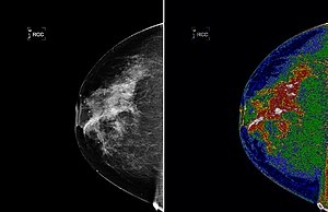 Region of interest - The left image shows an original mammogram before MED-SEG processing. The image on the right, with region of interest (white) labeled, shows a mammogram after MED-SEG processing.