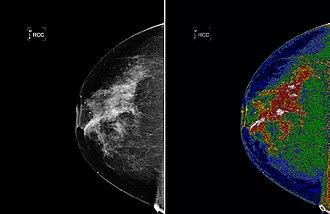 Region of interest - The left image shows an original mammogram before MED-SEG processing. The image on the right, with region of interest (white) labeled, shows a mammogram after MED-SEG processing.