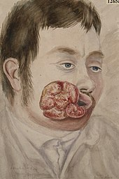 Man with extensive epithelioma at the corner of the mouth Wellcome L0062414.jpg