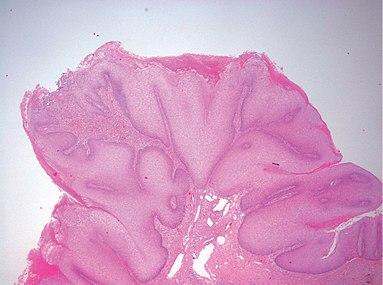 Micrograph of penile verrucous carcinoma - 20x.jpg