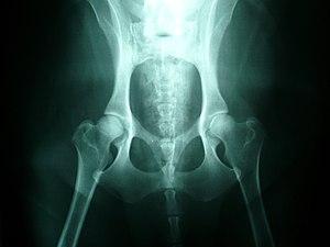 Hip dysplasia (canine) - Normal hips, for comparison